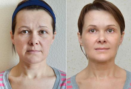 до и после упражнений на лицо