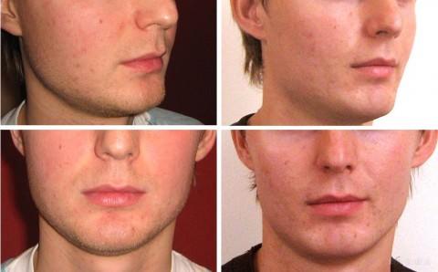 мужчина до и после операции по уменьшению щек