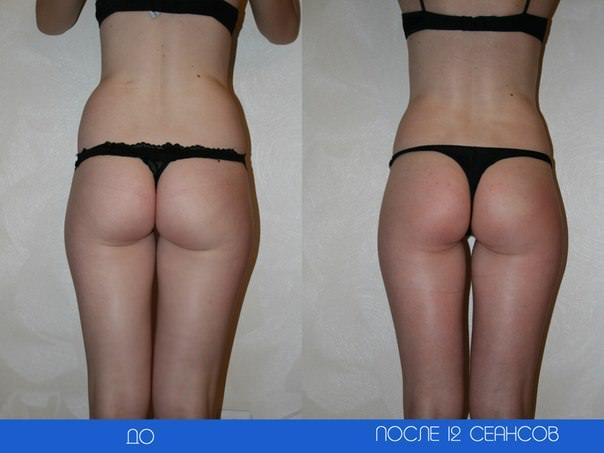 до и после массажа для похудения